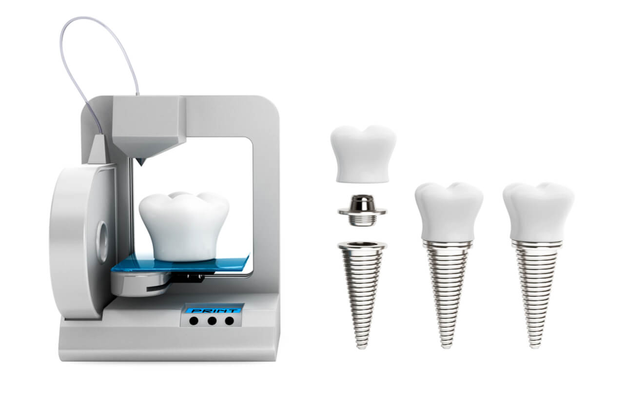 dental implant materials