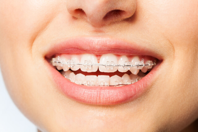 invisalign before and after overbite