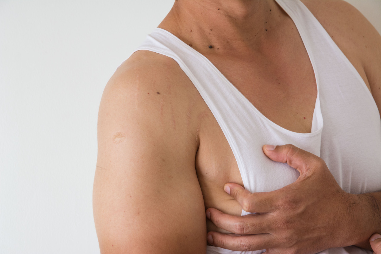 how to get rid of man breast